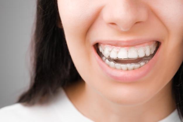 그녀의 치아에 투명 정렬기에 완벽한 미소로 행복한 여자