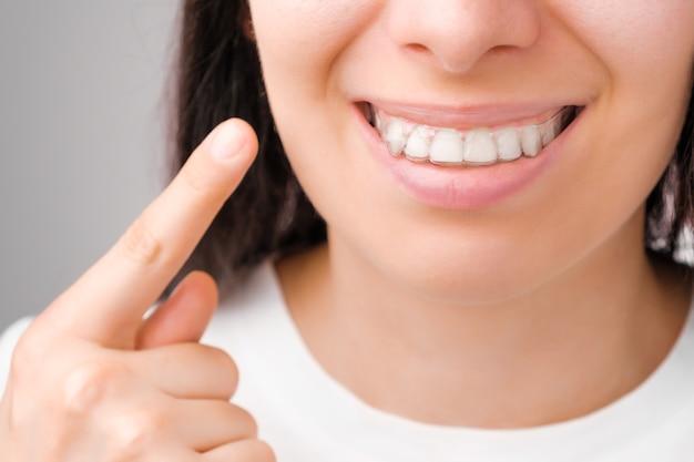 완벽한 미소를 가진 행복한 여자는 그녀의 이빨에 투명 정렬 장치에 손가락으로 보여줍니다