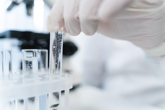 보건 의료. 약액으로 작업하는 동안 보호 고무 장갑을 끼고 유능한 연구원