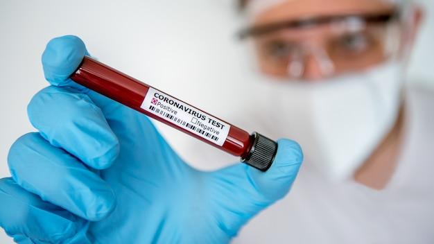 Здравоохранение для выздоровления от covid-19. ученый в хирургических перчатках и маске с положительным анализом крови, инфицированной коронавирусом. одежда для защиты от биологической опасности ученого