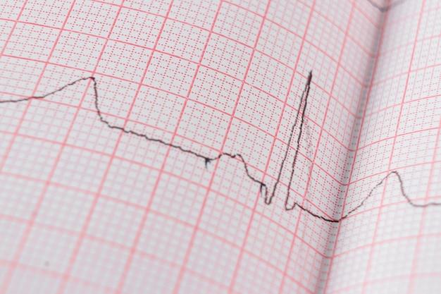 特殊紙の心臓心電図ekgチャート。心臓スキャン、健康保険、医学的背景、検査の概念。
