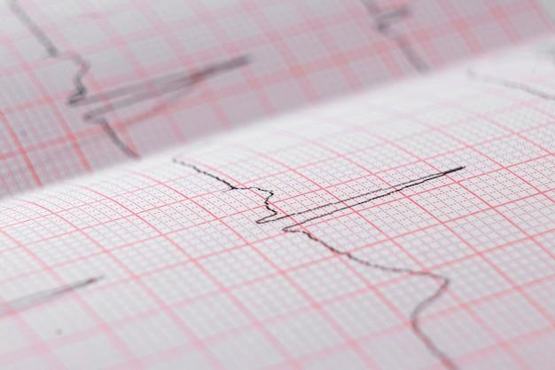 Электрокардиограмма сердца экг-карта на специальной бумаге. концепция сканирования сердца, медицинское страхование, медицинское образование, обследование.