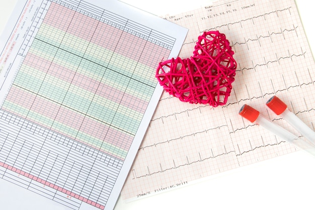 A heart and an electrocardiogram recording