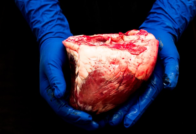 Heart in the hand of a surgeon .