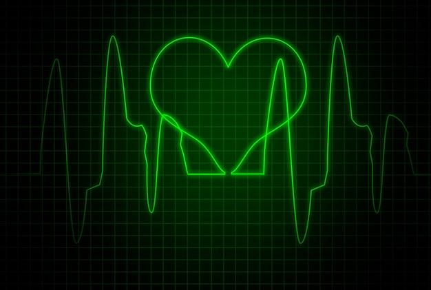 心拍チャート。緑色の画面に心拍数。心電図。