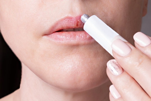 Herpes on the lips of the young woman . woman lubricates the labial herpes ointment