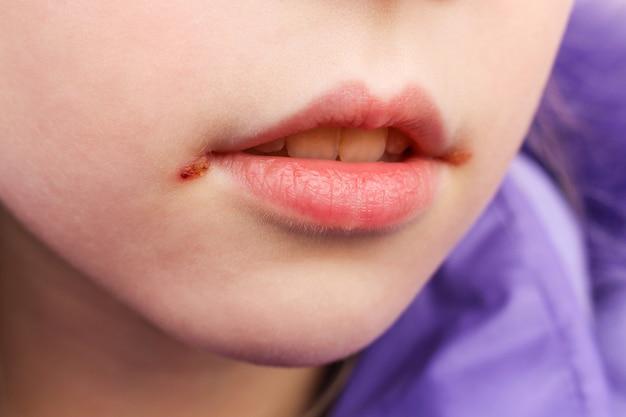 아이의 입술에 포진. 치료 연고.