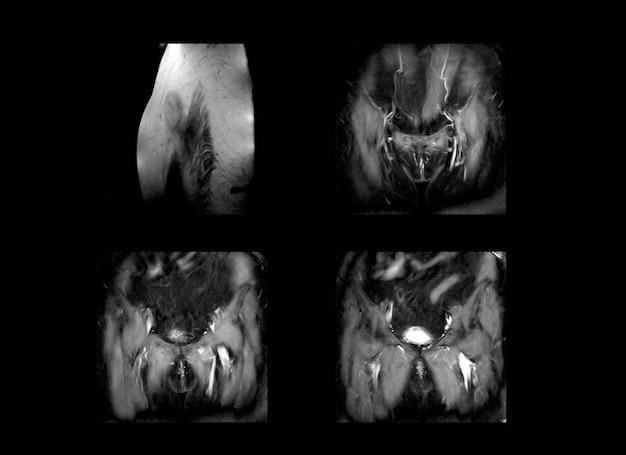 股関節および骨盤のmrix線画像とctスキャン