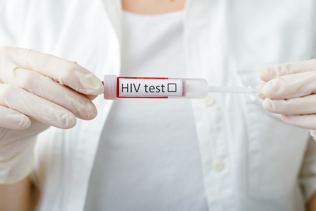 Hiv aids medical test blood sample in doctors hand in glove on white background