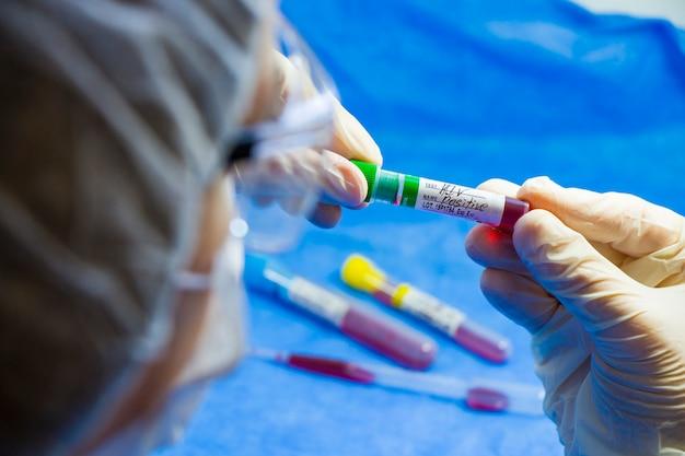 Тест на вич и спид, врачи лицо и рука, держащая трубку с кровью на синем столе. .