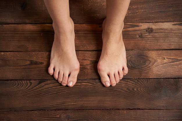 Hllux valgus на женских ножках крупным планом на деревянных фоне