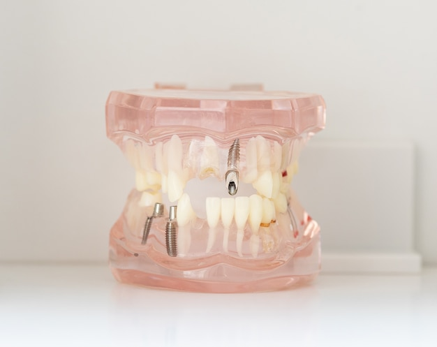 人間の歯科インプラント。歯科の概念。人間の歯または入れ歯。
