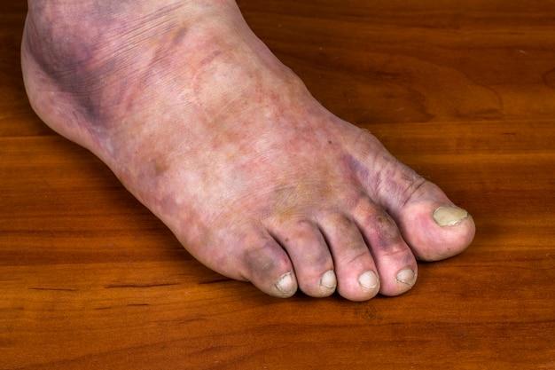 人間の足の骨折。男の足に巨大な紫色のあざ。