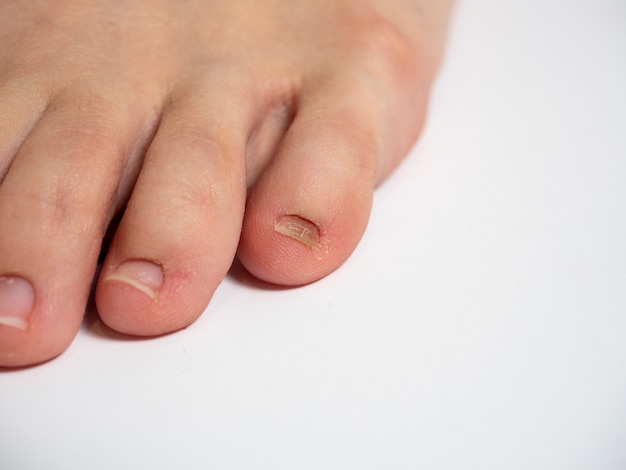 爪の問題で白い背景の上の人間の足。