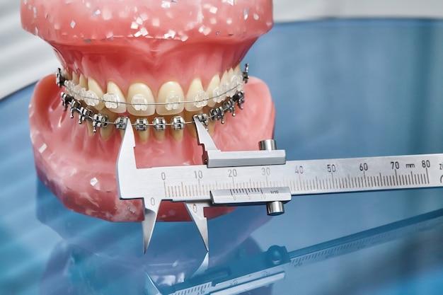 Модель челюсти человека с зубами и проволочными скобами