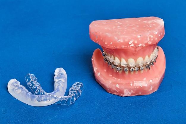 金属ワイヤード歯科ブレース、矯正用プレゼンテーションツール、クローズアップを備えた人間の顎または歯のモデル