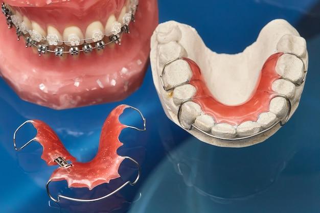 금속 유선 치과 교정기가있는 인간의 턱 또는 치아 모델, 교정 용 프레젠테이션 도구