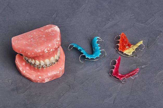 금속 유선 치과 교정기와 인간의 턱 또는 치아 모델