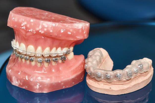 ワイヤーで縛られた金属製の歯列矯正器を備えた人間の顎または歯のモデル
