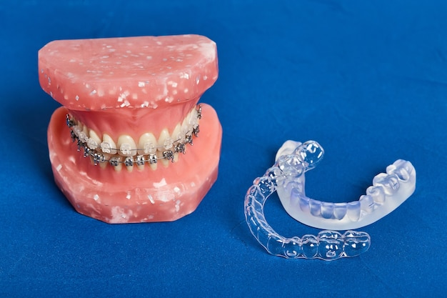 Human jaw or teeth model with metal wired dental braces, orthodontic presentation tool, closeup