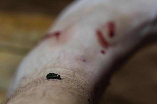 あざと蛭が血を吸う人間の脚。ヒルの攻撃は、雨季にジャングルを旅します。ストックフォトを閉じる