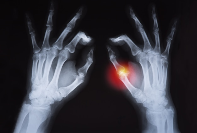 Human's hand's x ray highlighted in red.