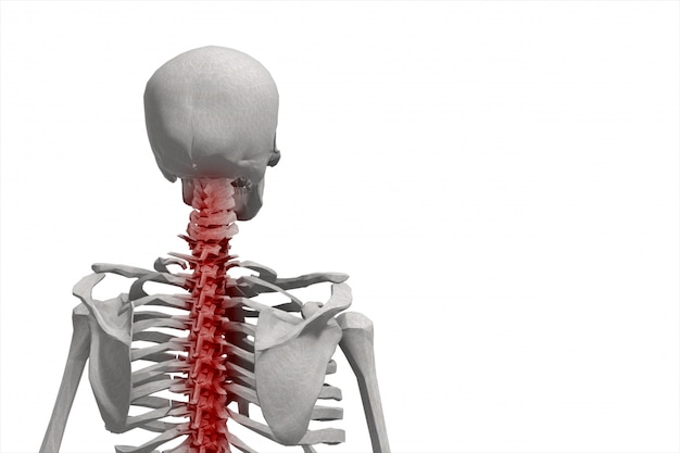 人間の骨格、背骨のイラスト、分離した背中の痛み