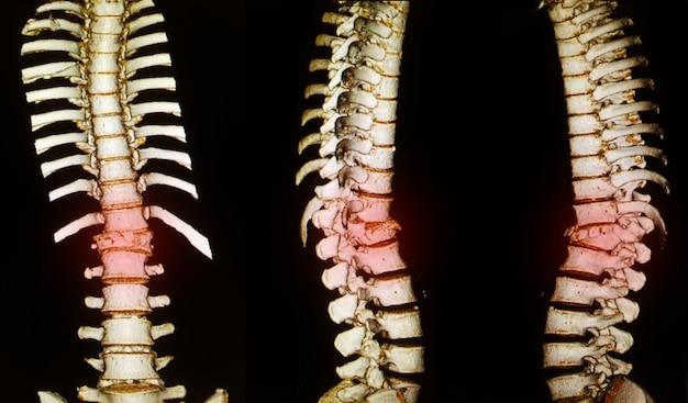 Human skeleton vertebral column discs anatomy show fracture.