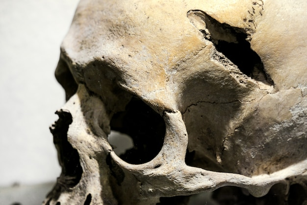 Human skull after injury. hole in the human skull