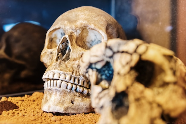 Human skull exposed in a museum
