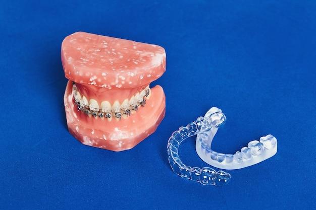 金属ワイヤード歯科用ブレースを備えた人間の歯のモデル