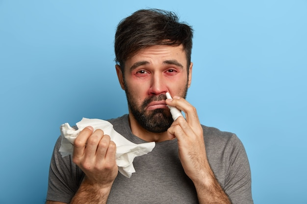 Hypersensive european man suffers from allergy, has red swelling eyes, inflammation of nose. sick man caught cold, uses nasal drops, holds handkerchief, symptoms of flu or fever, needs treatment
