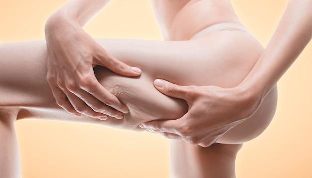 太ももの皮膚を圧迫する女性の画像。抗セルライト薬の広告。ミクストメディア