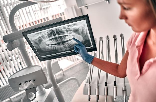 치아 엑스레이 필름을 제시하는 의사 또는 치과 의사의 이미지는 직장에서 일하는 치과 및 치과 치료에 환자를 추천합니다.