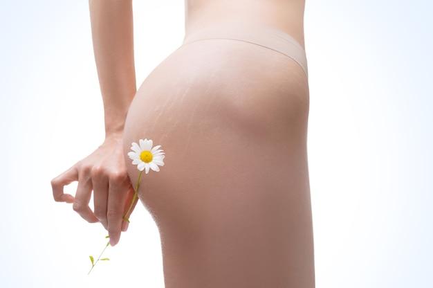 피부에 스트레치 마크가있는 여성 허벅지의 이미지. 카모마일 꽃. 천연 연고로 치료 예방. 유기농 의료 제품. 혼합 매체