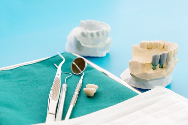 Implan model tooth support fix bridge implan and crown.