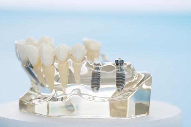 Имплантология и ортодонтическая модель для обучения учащемуся модели обучения, показывающей зубы.