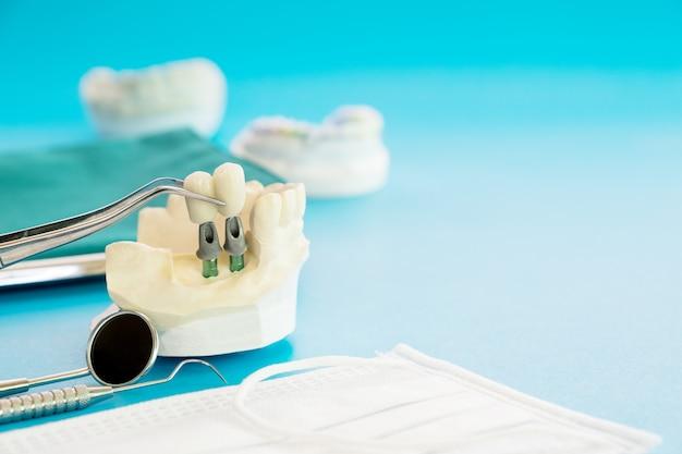 Модель имплантата зубной опоры фиксирует мостовой имплант и коронку