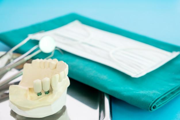 Модель имплантата зубной опоры фиксирует мостовой имплант и коронку.