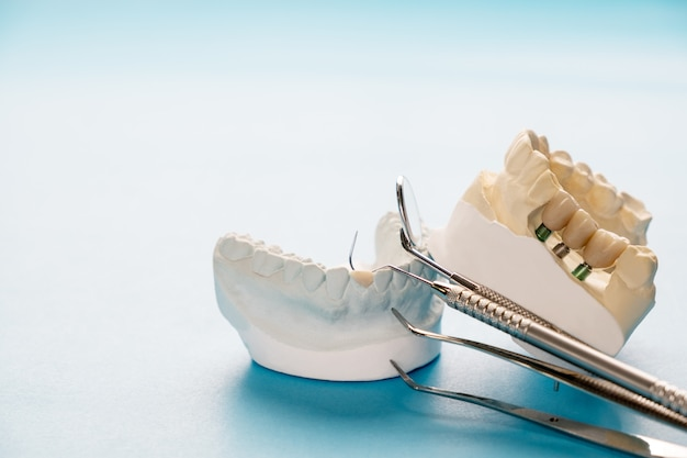 Implant model tooth support