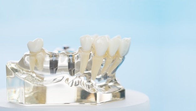Implant and orthodontic model for student to learning teaching model showing teeth.