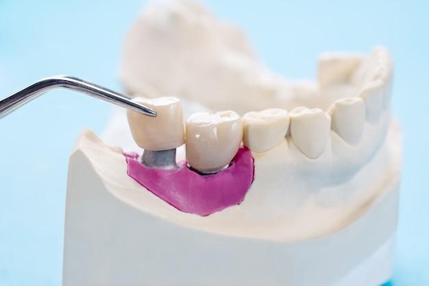 Implant prosthodontics or prosthetic
