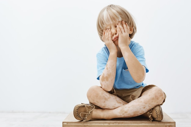 Indoor shot of cute european child with lovely haircut and vitiligo, covering face with palms while sitting, playing hide and seek with older brother