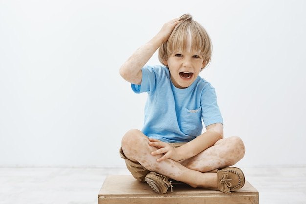 Indoor shot of unhappy cute blond child with vitiligo, having two-colored skin, sitting on floor with crossed feet, touching head and screaming