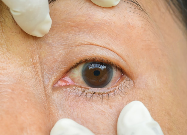 Inflamed eyes and itching