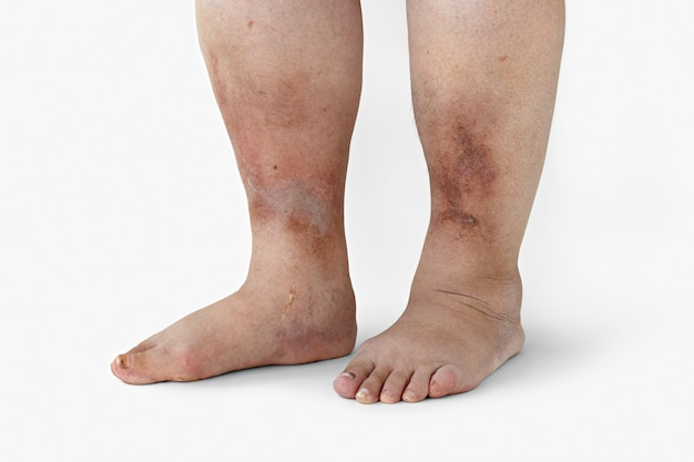Воспаленные ноги женщины с диабетом крупным планом