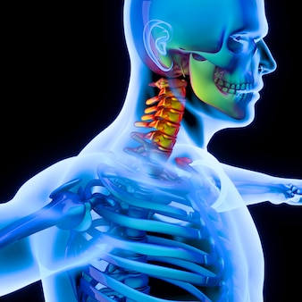Inflammation of the spine to the cervical vertebrae