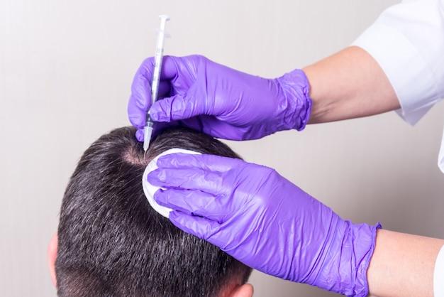 Инъекция, лечение выпадения волос