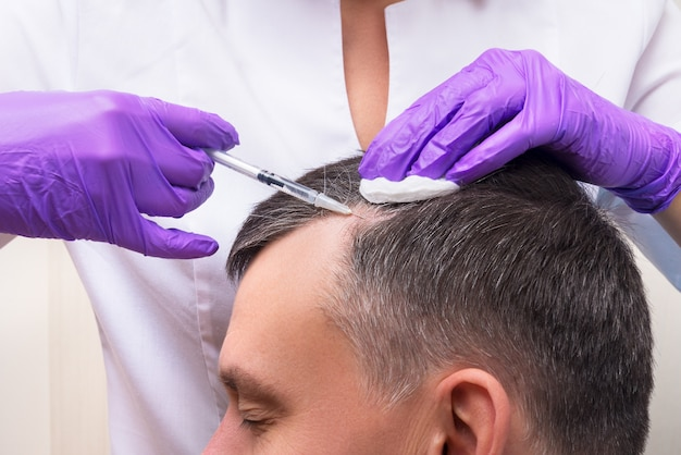 Injection, treatment for hair loss