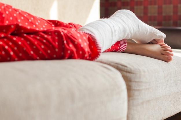 집에 있는 소파에 누워 있는 깁스를 하고 알아볼 수 없는 소녀의 다친 다리 프리미엄 사진
